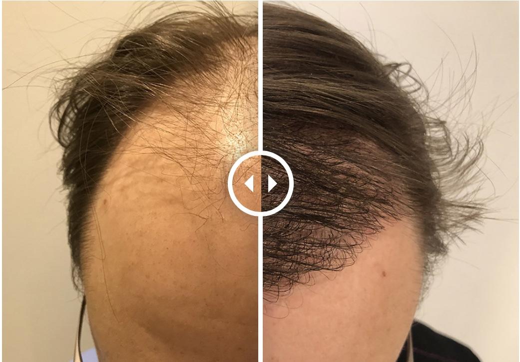 Den ultimata guiden för hårtransplantationer